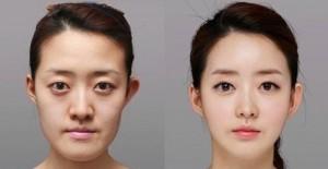 دکتر روانشناس:جوانان و عملهای زیبایی